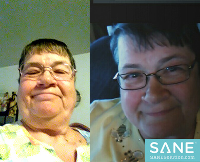 Shirley SANE Before After